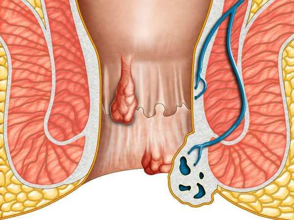 Наружный геморрой при беременности 3 метода лечения и советы